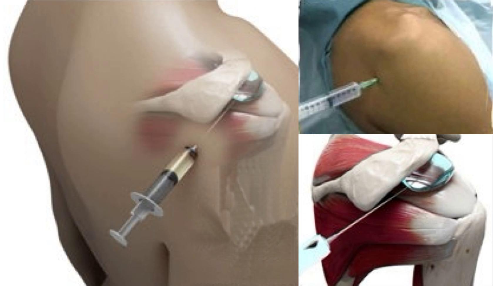 Rotator Cuff 3 - Supraspinatus Tendonitis - Treatment