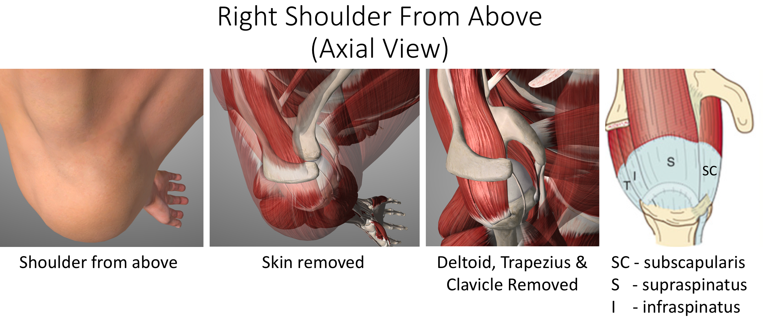 Fig 1 C. - Shoulder from above