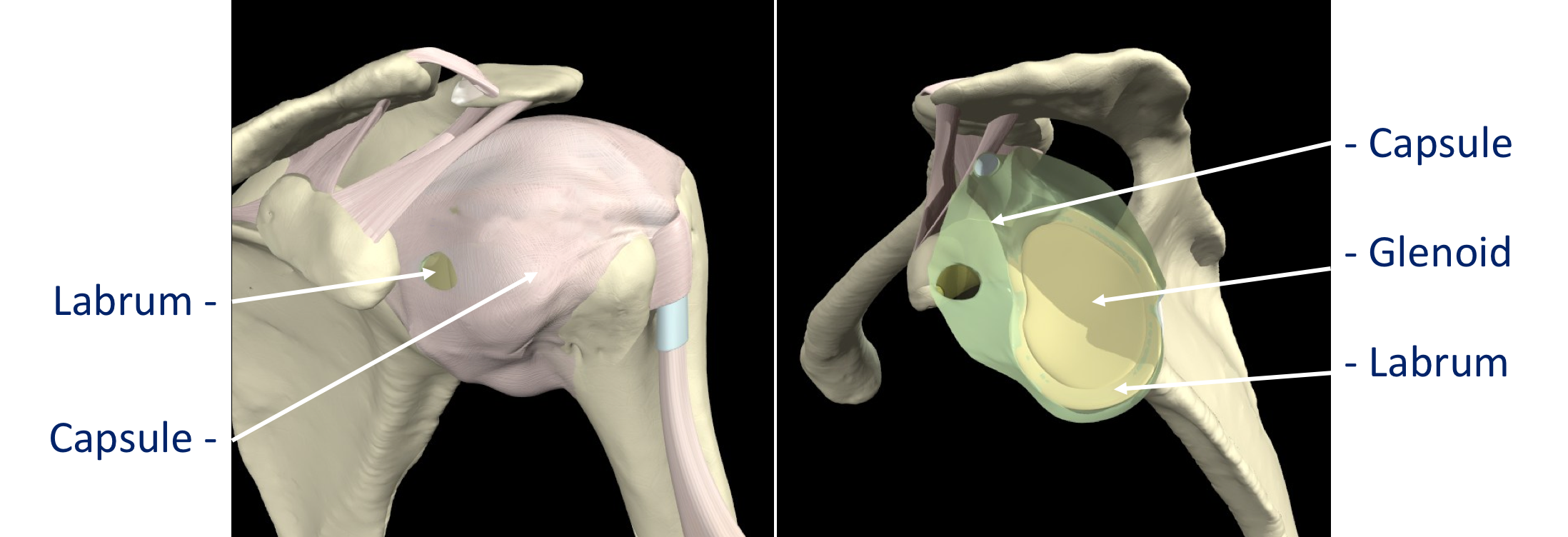 Fig 1. Capsule & Labrum