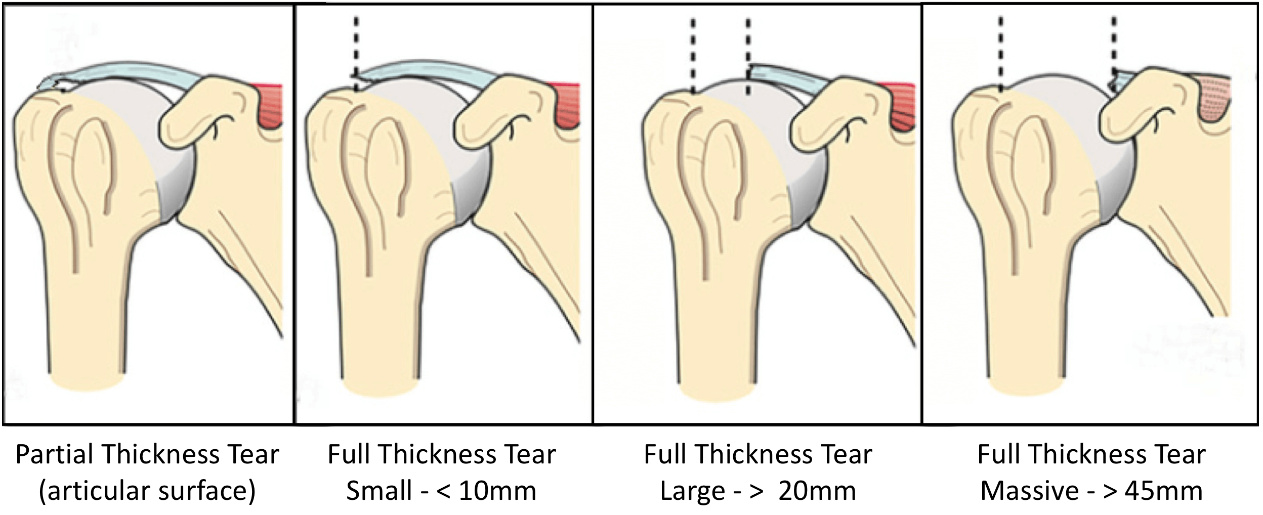 Fig 10. Full Thickness Tears