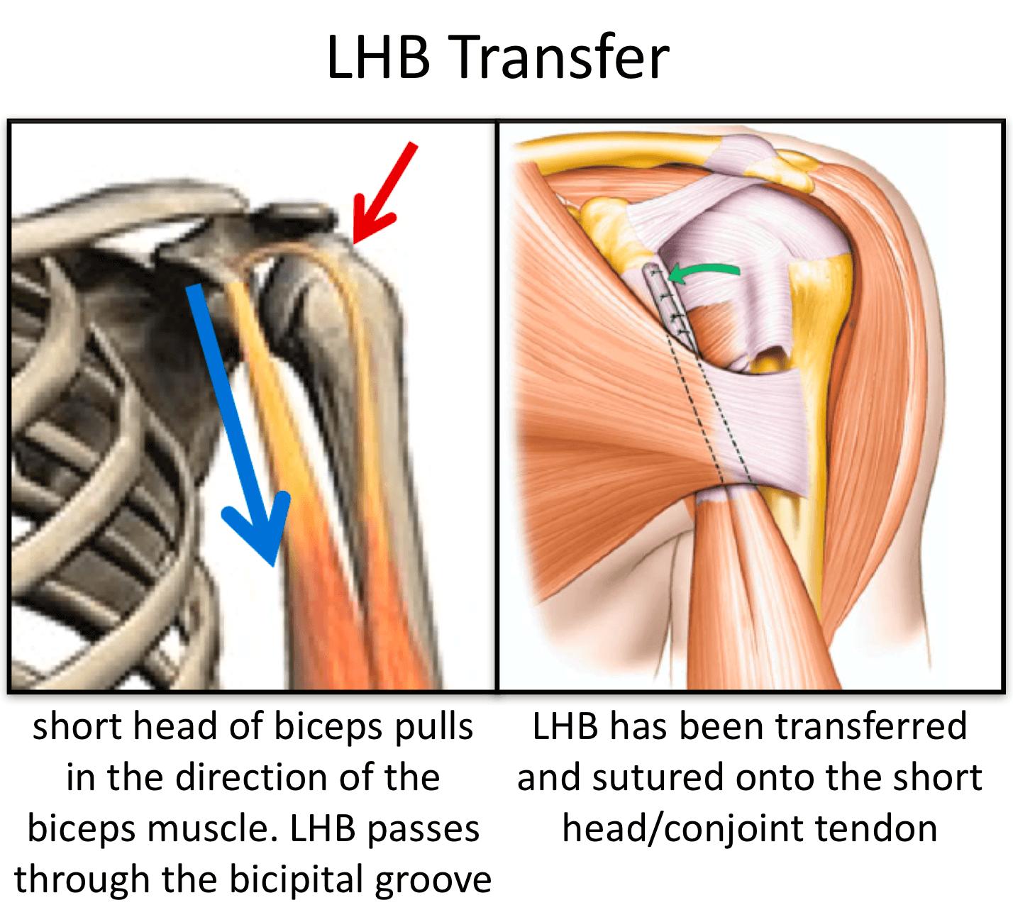 Fig 14. LHB Transfer