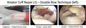 Fig 18. Cuff Repair 1