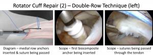 Fig 19. Cuff Repair 2