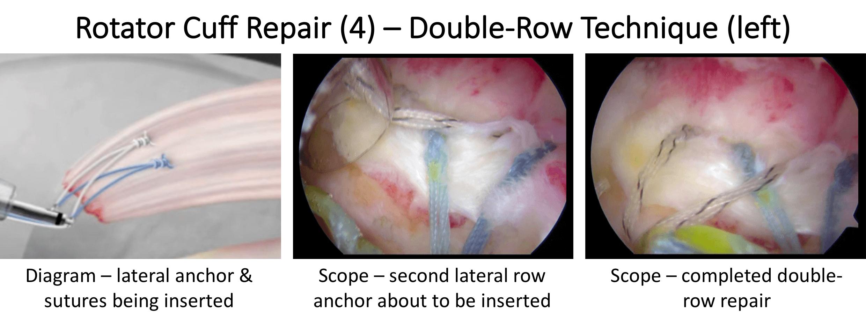 Fig 21. Cuff Repair 4