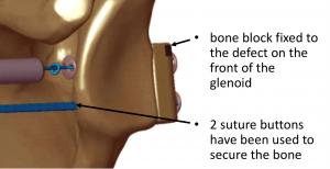 Fig 37. Eden-Hybinette suture button