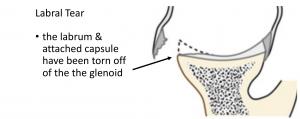 Fig 4. Labral Tear
