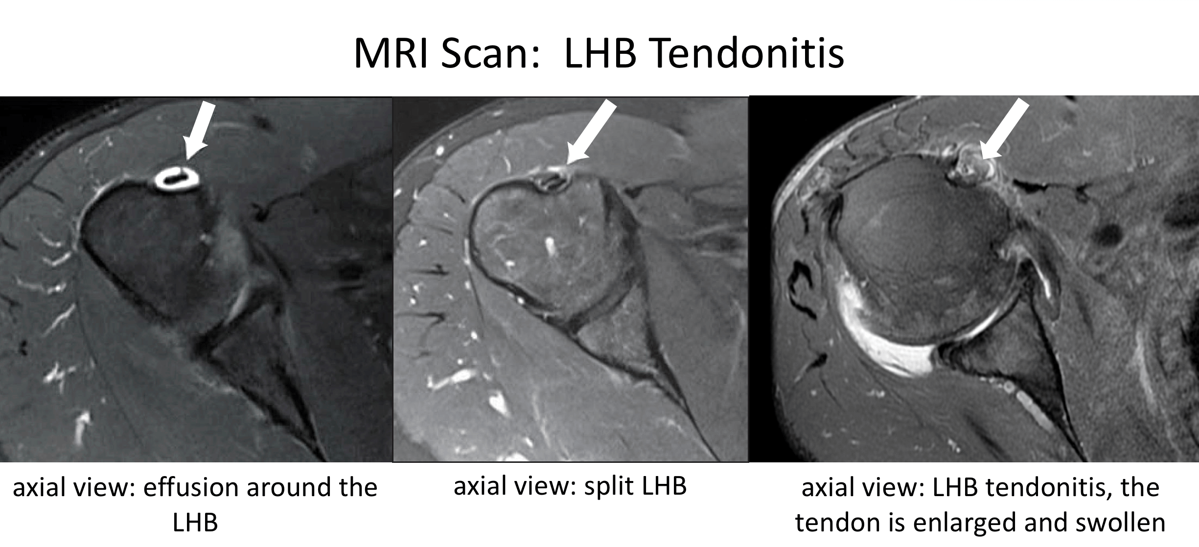 Fig 6. MRI Tendonitis