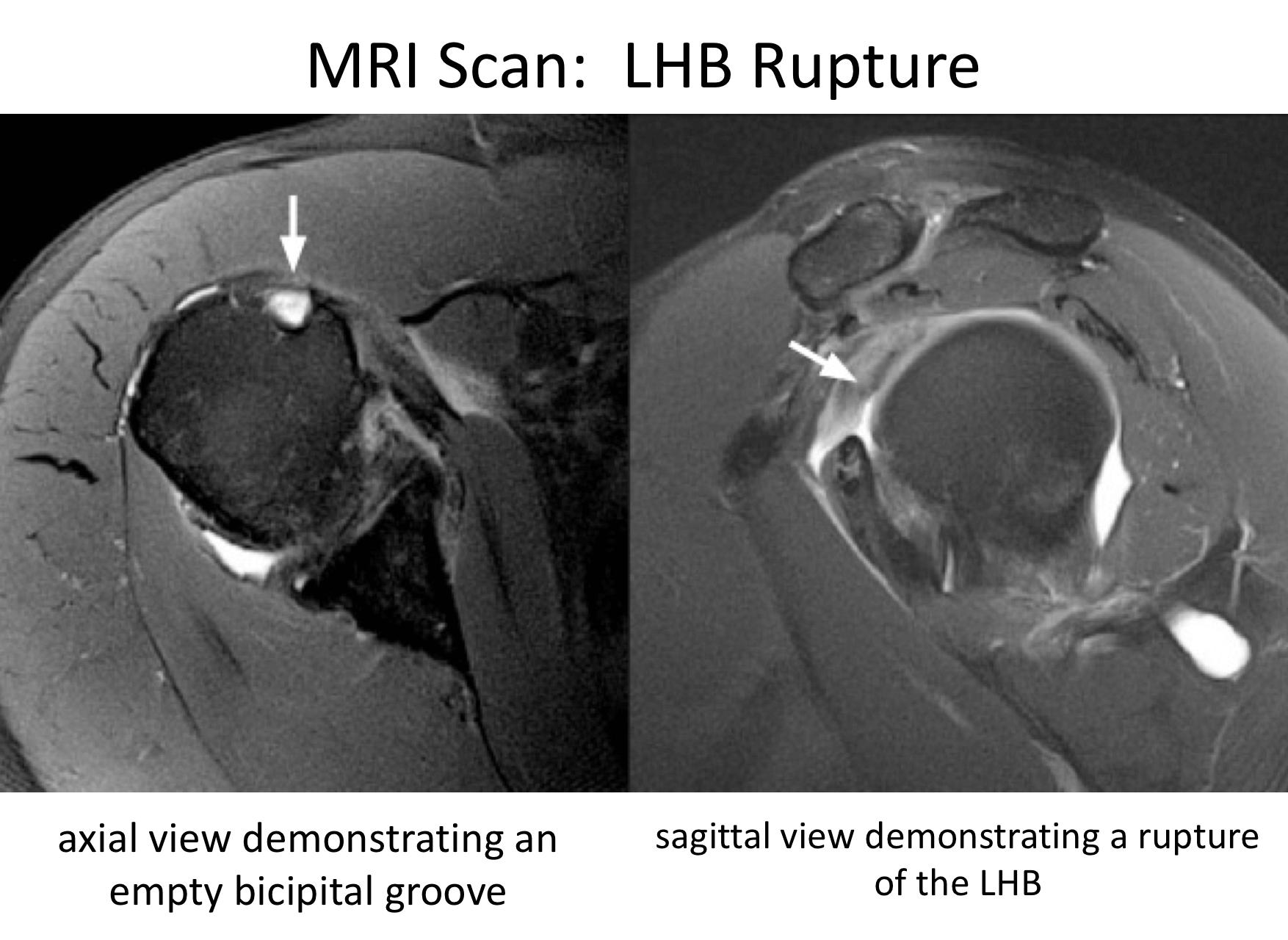Fig 7. MRI LHB rupture