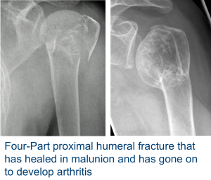Fig A Humeral Fracture