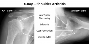 Fig 2. X-Ray of Shoulder OA