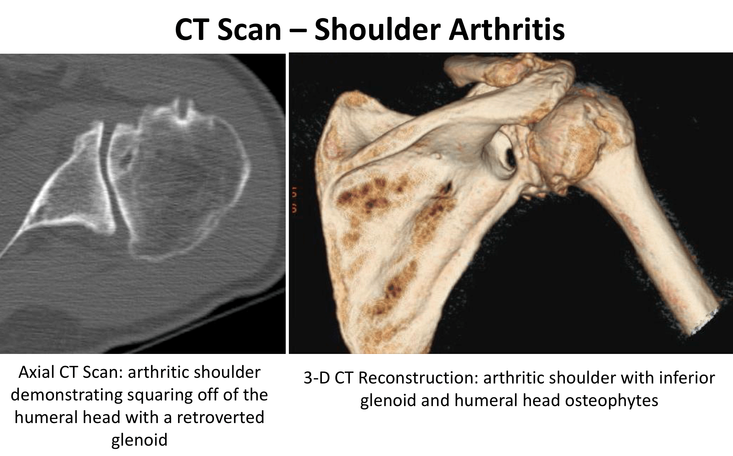 Fig-3.-CT-Scan-Shoulder-OA