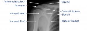 Fig 1. X-Ray AP
