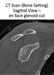 Fig 13. CT Sagittal