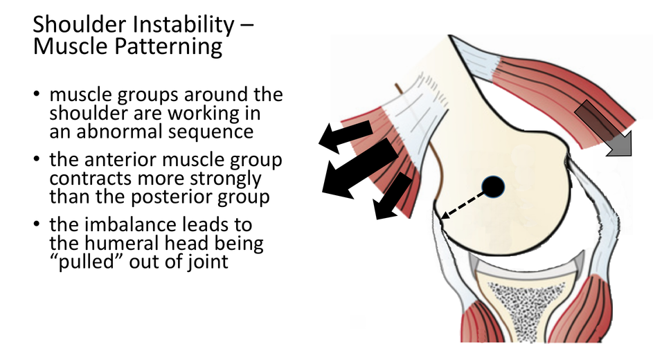 fig_9_ligamentous_laxity_instability_-_lax_capsular_ligaments_allow_the_head_to_dislocate_with_no_traumatic_injury
