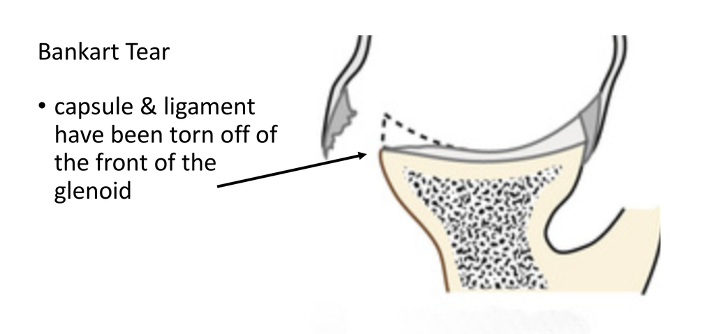fig_7_traumatic_instability_-_bankart_tear_the_anterior_capsule__labrum_have_been_torn